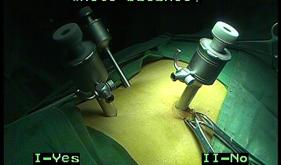 科室品牌与特色:泌尿外科腹腔镜技术—手术过程简单介绍